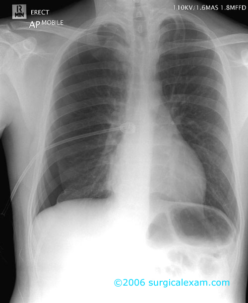 Pneumothorax with pigtail drain